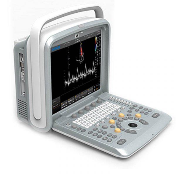 اکوکاردیوگرافی رنگی مدل Q6