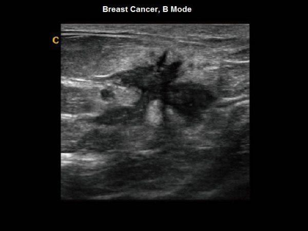 Breast Cancer, B Mode