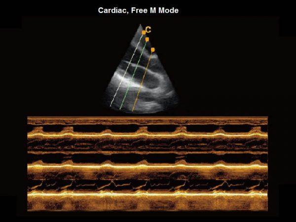 Cardiac, Free M Mode