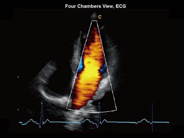 Four Chambers View, ECG